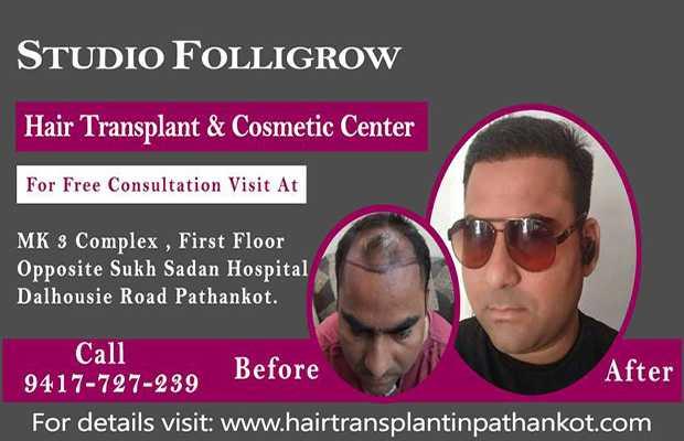hair_transplant_result